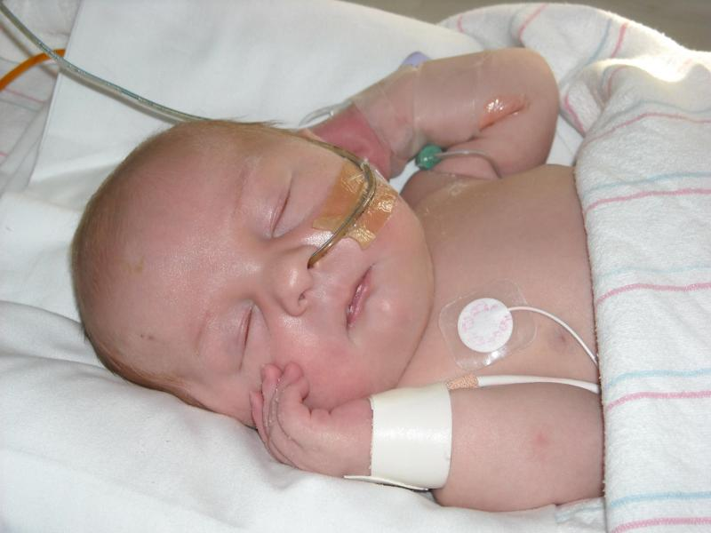 Our beautiful son.  He had his first surgery while in the NICU for hirschsprungs